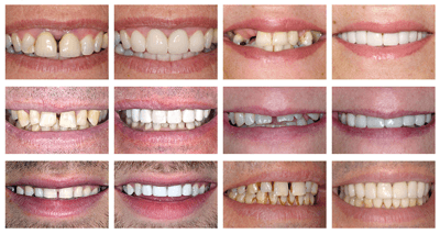 gap teeth before and after preview