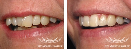 BEFORE & AFTER SIX MONTH SMILES case 1