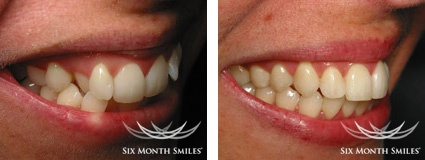 BEFORE & AFTER SIX MONTH SMILES case 2