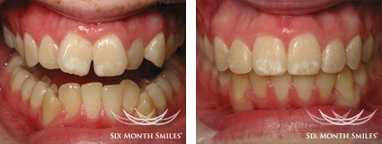 BEFORE & AFTER SIX MONTH SMILES case 3