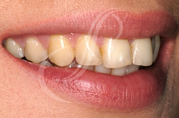 Before Trial Smile Treatments