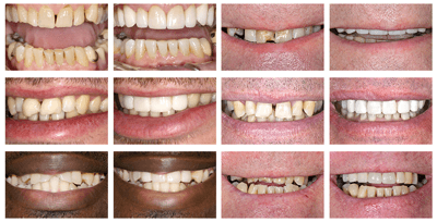 worn teeth before and after preview