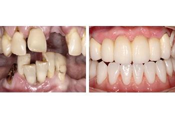 Teeth Implants Treatment