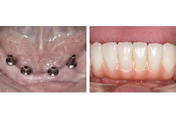 All on 4 Implants Dentistry