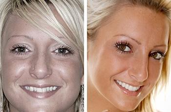 Crooked teeth procedures
