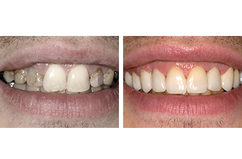 Cosmetic Treatment – For Decayed Teeth