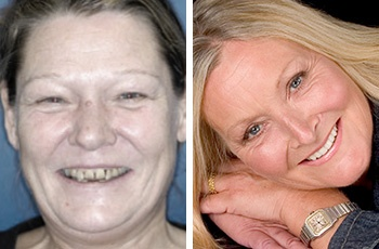 Enhanced Teeth Whitening systems can be used to brighten your teeth