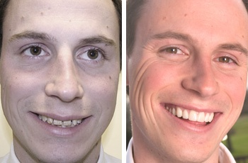 Cosmetic Dentists For Gaps Care