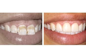 Smile Makeover – Gum Care