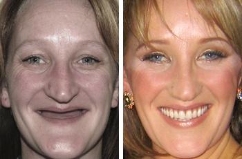 Teeth Implant Procedure
