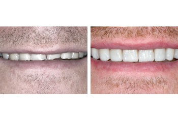 Worn Teeth Smile Makeover