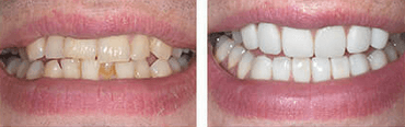 Cosmetic Dentistry at the Perfect Smile Studios