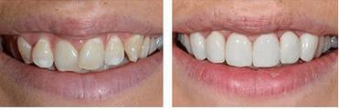 before and after dental veneers