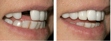 single implant restoration