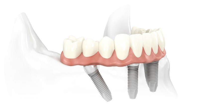 Dental Implants from Perfect Smile Cosmetic Dentist
