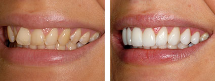 crowded teeth repair Essex