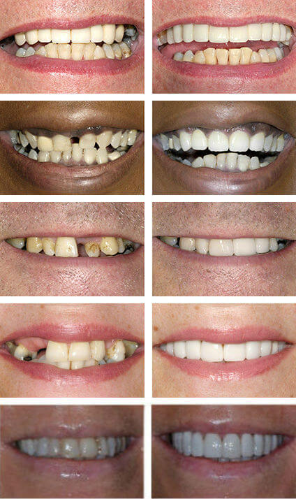 Gaps in Teeth Smiles