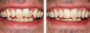 Teeth Alignment Before-After