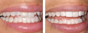 Align-Bond-Contour by Cosmetic Dentistry