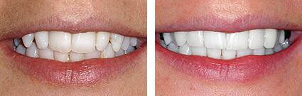 Before and After Veneers by Perfect Smile 2017