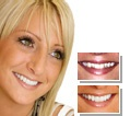 Ideal Perfect Smile Makeover