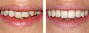 Teeth Contouring Before-After Images