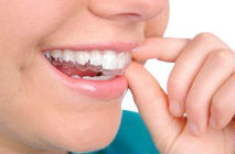 Clear Aligners - The Perfect Smile