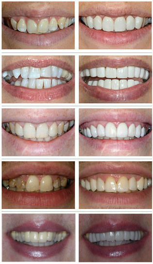 Before and after results of narrow smiles at The Perfect Smile Studios in Hertfordshire