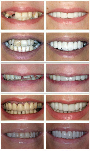 Before and after images of narrow smiles