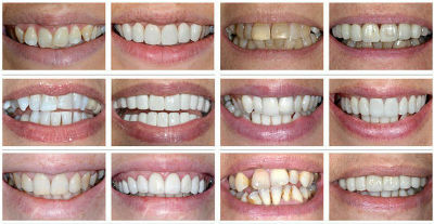 narrow teeth before and after preview