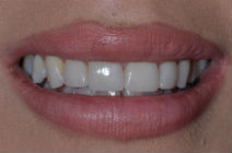 LUCY J DISCOLOURED TEETH AFTER PHOTOS