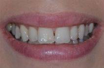 LUCY J DISCOLOURED TEETH BEFORE PHOTOS