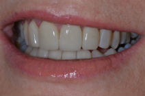 CLARE E DISCOLOURED TEETH AFTER PHOTOS, NARROW SMILES - AFTER PHOTOS