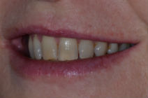 CLARE E DISCOLOURED TEETH BEFORE PHOTOS, NARROW SMILES - BEFORE PHOTOS