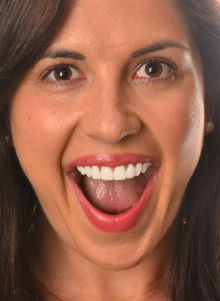 HELEN S DISCOLOURED TEETH BEFORE & AFTER PHOTOS