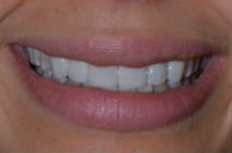 MIRANDER C CROOKED TEETH / CROWDING AFTER PHOTOS TPS LONDON, DISCOLOURED TEETH AFTER PHOTOS