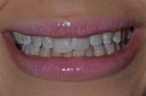 MIRANDER C CROOKED TEETH / CROWDING BEFORE PHOTOS TPS LONDON, DISCOLOURED TEETH BEFORE PHOTOS