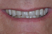 GARY C WORN TEETH - AFTER PHOTOS