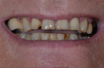 GARY C WORN TEETH - BEFORE PHOTOS