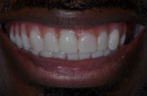OLAYINKA M DISCOLOURED TEETH AFTER PHOTOS, GAPS - AFTER PHOTOS, OLD CROWNS - AFTER PHOTOS