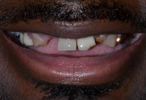OLAYINKA M DISCOLOURED TEETH BEFORE PHOTOS, GAPS - BEFORE PHOTOS, OLD CROWNS - BEFORE PHOTOS