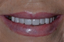 WENDY T DISCOLOURED TEETH AFTER PHOTOS