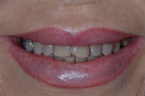 WENDY T DISCOLOURED TEETH BEFORE PHOTOS