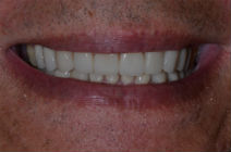 DAVID F WORN TEETH - AFTER PHOTOS