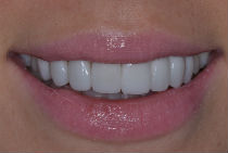 GEORGINA J CROOKED TEETH / CROWDING AFTER PHOTOS