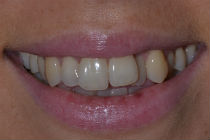 GEORGINA J CROOKED TEETH / CROWDING BEFORE PHOTOS