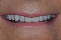 JENNY F DISCOLOURED TEETH AFTER PHOTOS, NARROW SMILES - AFTER PHOTOS