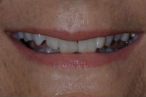 JENNY F DISCOLOURED TEETH BEFORE PHOTOS, NARROW SMILES - BEFORE PHOTOS