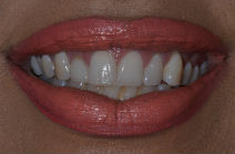 KARINA S DISCOLOURED TEETH BEFORE PHOTOS, NARROW SMILES - BEFORE PHOTOS