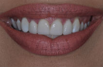 KARINA S DISCOLOURED TEETH AFTER PHOTOS, NARROW SMILES - AFTER PHOTOS